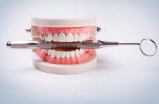 Cum ne afectează parodontoza sănătatea orală?